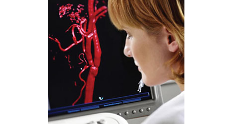 Allura 3D Software de análisis de rayos X