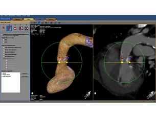 HeartNavigator Software für Behandlungsplanung und -führung