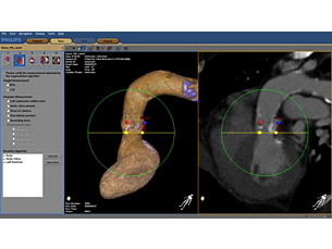 HeartNavigator Making the difference with Live Image Guidance
