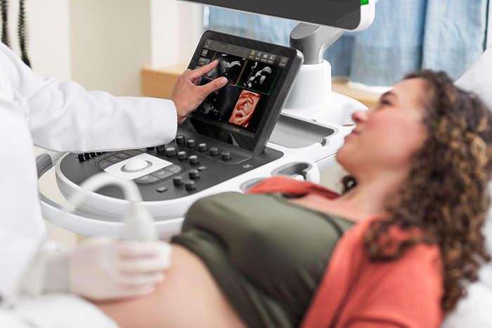 Obstetrics ultrasound imaging shown on the EPIQ Elite