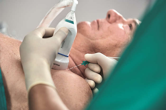 Onvision guidance solution for regional anesthesia from Philips and B. Braun