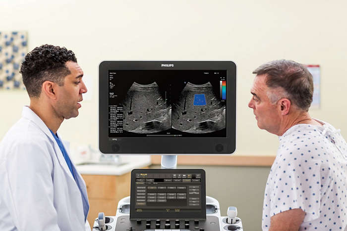 Philips EPIQ CVx with doctor and patient