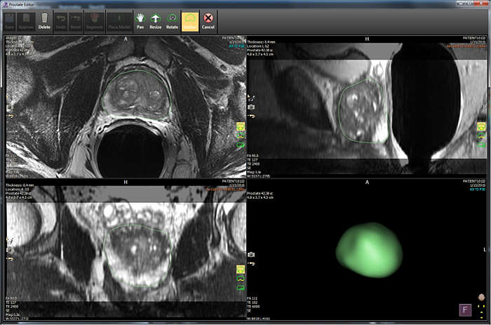 IntelliSpace Portal 10 supports Philips expansion into DynaCAD Prostate solutions