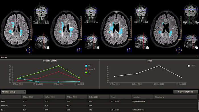 Philips, IntelliSpace Portal, Longitudinal Brain Imaging, Lobi, neurology