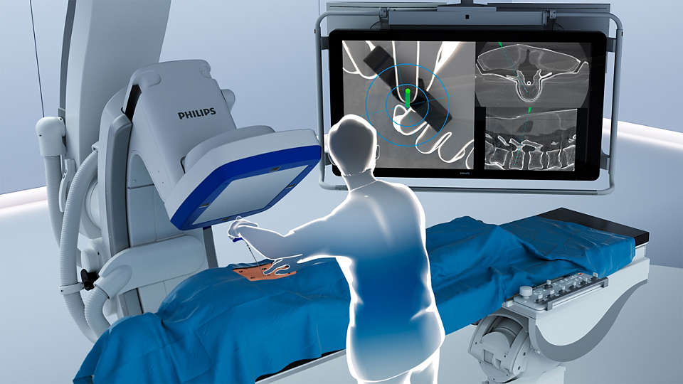 ClarifEye Augmented Reality Surgical Navigation