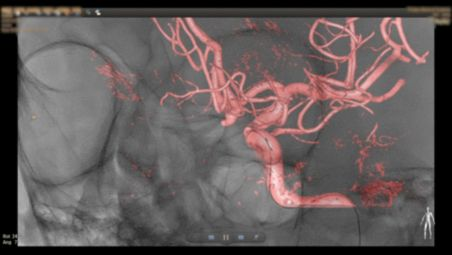 Full 3D view with reduced X-ray dose and contrast medium usage video
