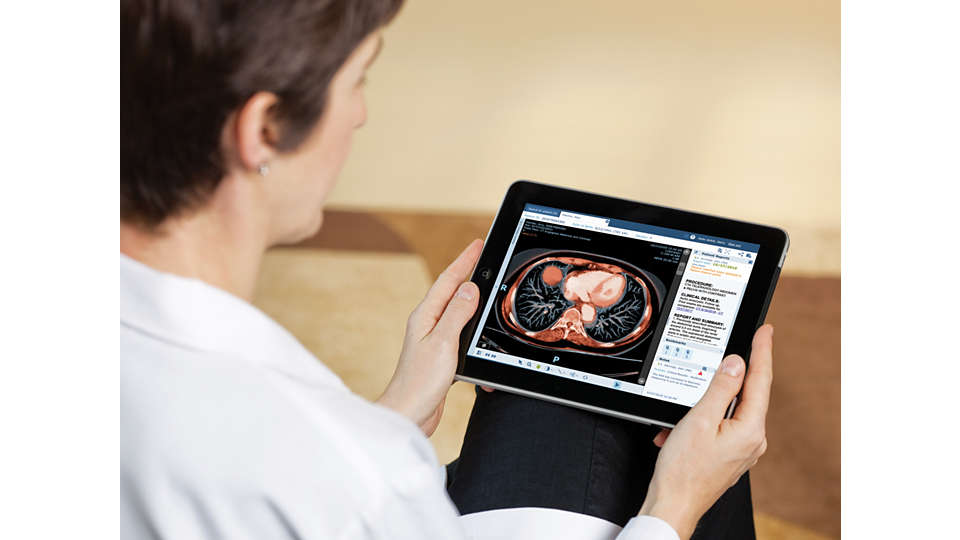 Philips Image Viewer Vue Motion for Clinicans