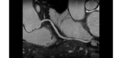 CoronaryAcquisition Клиническое приложение для МР-исследований