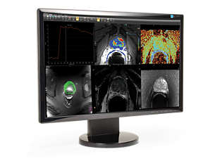 DynaCAD Prostate Advanced visualization for prostate MRI analysis