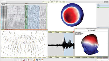 High density EEG montages
