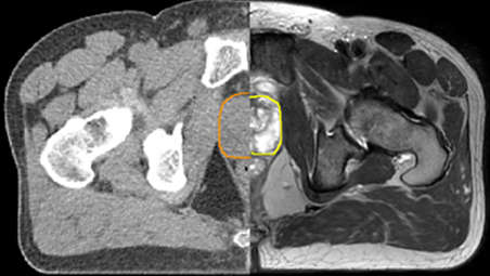 Enhance target contouring with MRI's excellent soft-tissue contrast