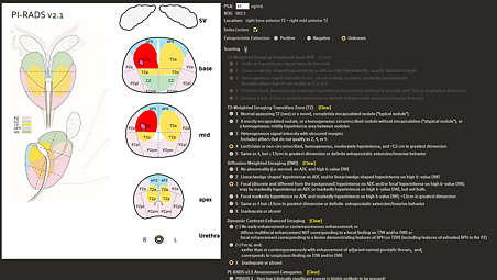 Interactive worksheets summarize study findings