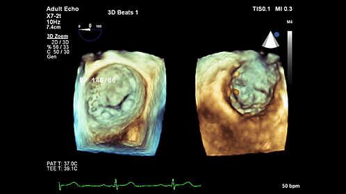 Philips - EPIQ 7 Ultraschallsystem für die Kardiologie