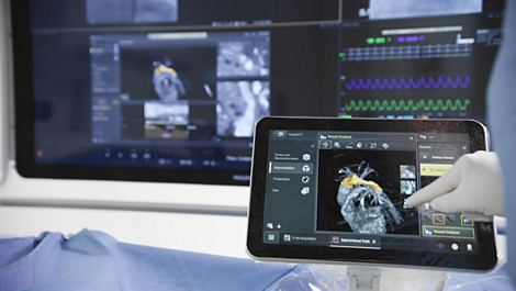 3D-RA 3D Rotational Angiography imaging technology