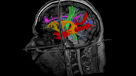MultiBandSENSE Клиническое приложение для МР-исследований