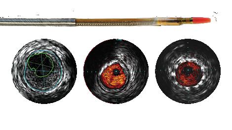 Reconnaissance PV .018 OTW Digital IVUS catheter