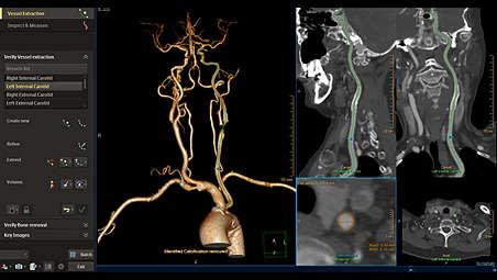 Vascular analysis innovated workflow designed for faster result