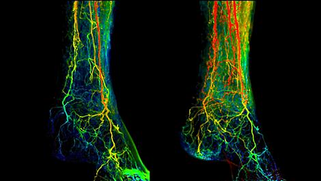 2D Perfusion 血管造影介入中的灌注成像
