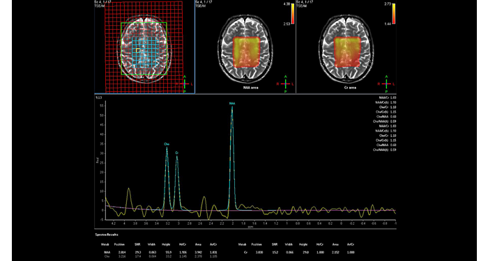 Spectroscopy - Brain  MR Clinical application