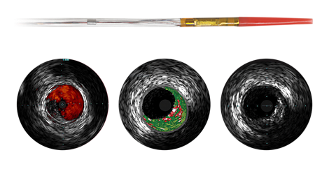 Eagle Eye Platinum Digital IVUS catheter