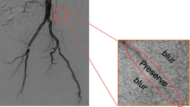 增强临床结构,为血管手术提供便利