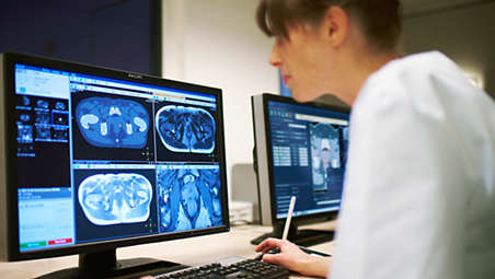 Driving speed and consistency from imaging to plan