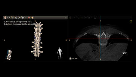 Visualize complexity of spinal anatomy with high quality CBCT