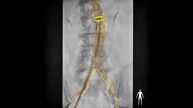 Marcadores de anillo anatómico