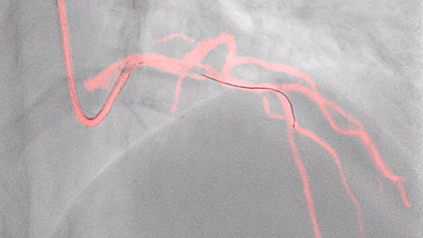 Dynamic Coronary Roadmap See clearly, guide confidently