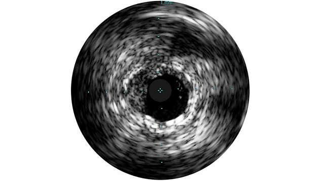 Grayscale enhances procedures