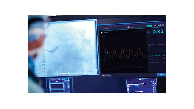 La modalidad de iFR simplifica el flujo de trabajo