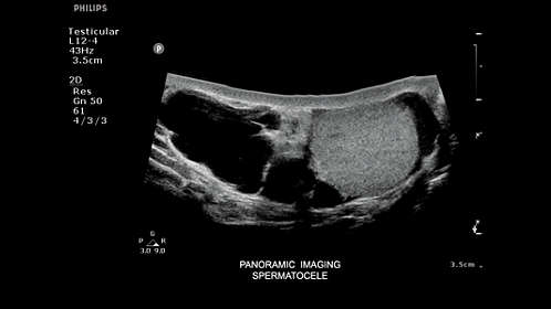 Philips - ClearVue 550 Ultrasound system
