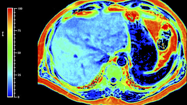 Advanced MRI