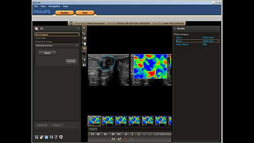 QLAB Ultrasound Cardiac Analysis | Philips Ultrasound