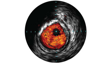 IVUS imaging helps physicians assess disease markers including plaque burden percentage, lesion location and morphology, calcium volume, and the presence of thrombus.