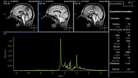 Spectroscopy XD Klinische MR-Anwendung