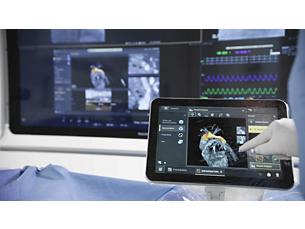 SmartCT Angio Bildgebungstechnologie