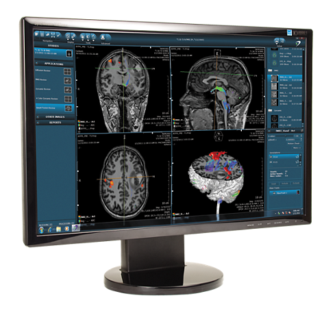 DynaSuite Neuro Advanced visualization for neuro analysis