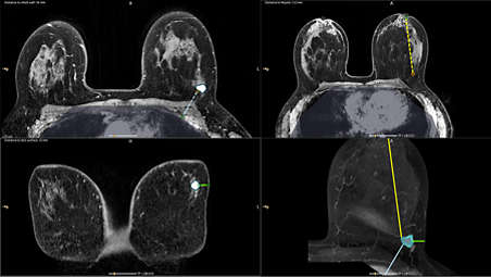 Lesion segmentation enhances workflow efficiency