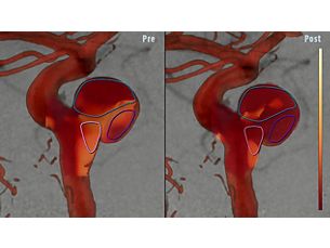 AneurysmFlow Cerebral aneurysm flow quantification