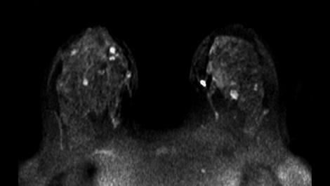 Diffusion Клиническое приложение для МР-исследований