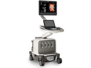 EPIQ Sistema premium de ultrassom cardíaco