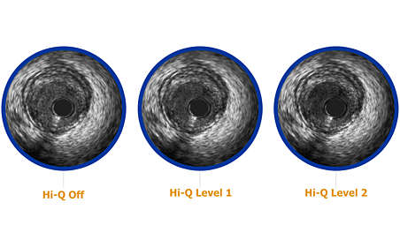 3 Hi-Q imaging options