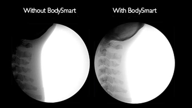 Save time and X-ray dose with BodySmart software