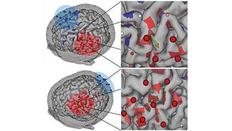 Consistent neuromodulation