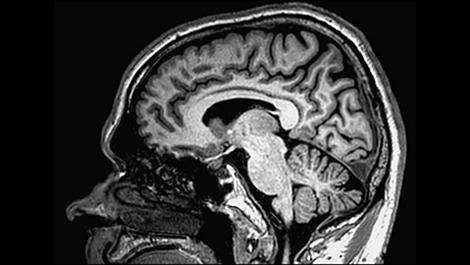 3D Non-selective– Gehirn Klinische MR-Anwendung