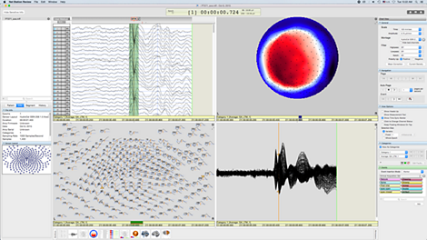 Net Station software EEG acquisition, review, and analysis software