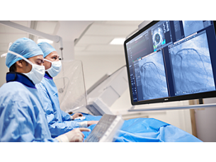 CardiacSwing Dual-axis rotational coronary angiography