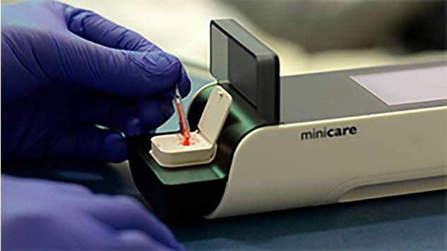 Résultats comparables au laboratoire en 10 minutes à partir d'une seule goutte de sang