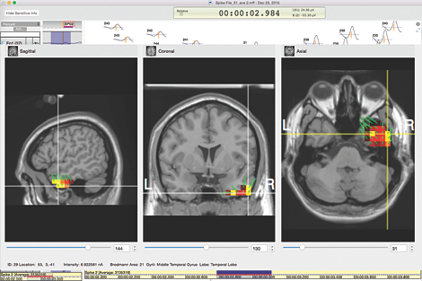 GeoSource 2 clinical ESI software EEG source imaging software